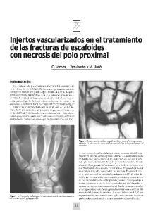 - - Injertos vascularizados en el tratamiento de las fracturas de escafoides con necrosis del polo proximal