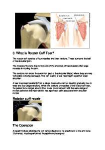 3. What is Rotator Cuff Tear?