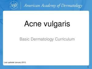 Acne vulgaris. Basic Dermatology Curriculum