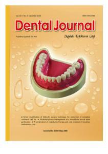 Alveolar ridge rehabilitation to increase full denture retention and stability