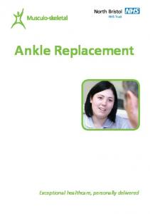 Ankle Replacement. Exceptional healthcare, personally delivered
