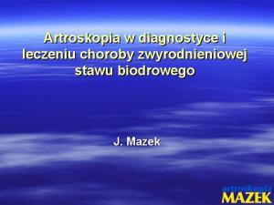 Artroskopia w diagnostyce i leczeniu choroby zwyrodnieniowej stawu biodrowego. J. Mazek