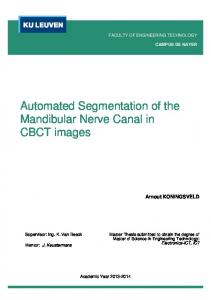 Automated Segmentation of the Mandibular Nerve Canal in CBCT images