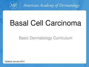 Basal Cell Carcinoma. Basic Dermatology Curriculum