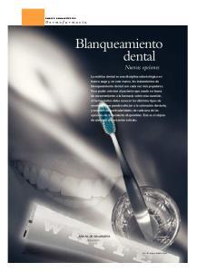 Blanqueamiento dental Nuevas opciones