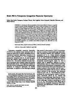Brain MR in Fukuyama Congenital Muscular Dystrophy