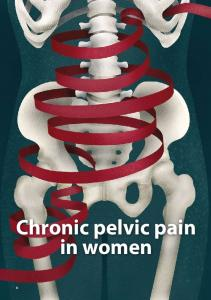 Chronic pelvic pain in women
