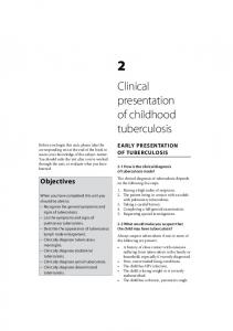 Clinical presentation of childhood tuberculosis