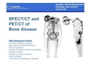 CT of Bone disease
