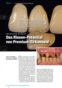 Das Riesen-Potential von Premium-Zirkonoxid