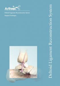 Deltoid Ligament Reconstruction System Surgical Technique