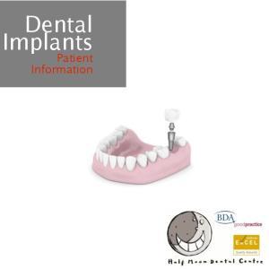 Dental Implants. Patient Information