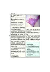 Dermatitis de contacto vulvar