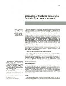 Diagnosis of Ruptured Intracranial Dermoid Cyst: Value of MR over CT