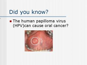 Did you know? The human papilloma virus (HPV)can cause oral cancer?