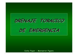 DRENAJE TORACICO DE EMERGENCIA