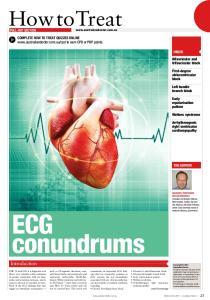 ECG conundrums