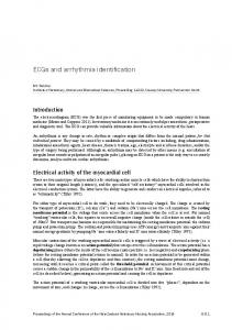 ECGs and arrhythmia identification