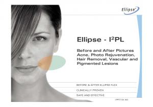 Ellipse - I 2 PL. Before and After Pictures Acne, Photo Rejuvenation, Hair Removal, Vascular and Pigmented Lesions 1PPT7135-A04