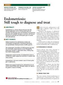 Endometriosis: Still tough to diagnose and treat
