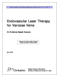 Endovascular Laser Therapy for Varicose Veins