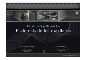 Esclerosis de los maxilares