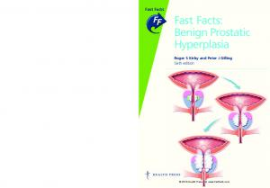 Fast Facts: Benign Prostatic Hyperplasia