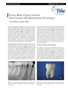 FILLING ROOT CANAL SYSTEMS