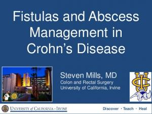 Fistulas and Abscess Management in Crohn s Disease