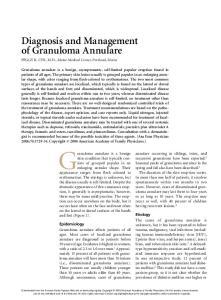 Granuloma annulare is a benign