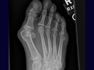 Hallux abducto valgus what it is and how it is treated. Yulia Volokhina April 23, 2015