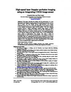 High-speed laser Doppler perfusion imaging using an integrating CMOS image sensor