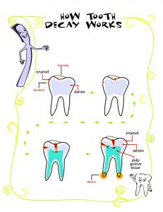 how tooth decay works