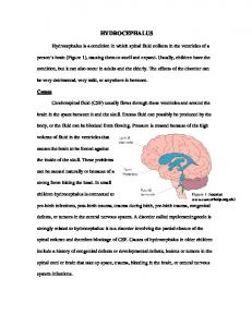 HYDROCEPHALUS. Hydrocephalus is a condition in which spinal fluid collects in the ventricles of a