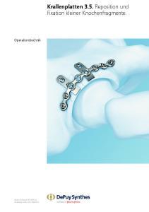 Krallenplatten 3.5. Reposition und Fixation kleiner Knochenfragmente