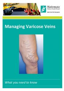Managing Varicose Veins