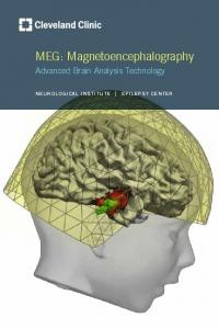 MEG: Magnetoencephalography
