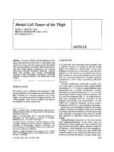 Merkel Cell Tumor of the Thigh
