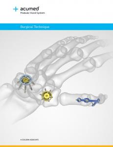 Modular Hand System. Surgical Technique