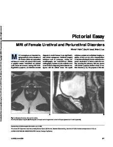 MRI of Female Urethral and Periurethral Disorders