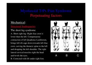 Myofascial TrPs Pain Syndrome Perpetuating factors