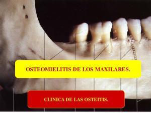OSTEOMIELITIS DE LOS MAXILARES. CLINICA DE LAS OSTEITIS