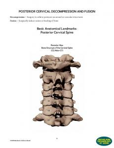 POSTERIOR CERVICAL DECOMPRESSION AND FUSION. Basic Anatomical Landmarks: Posterior Cervical Spine