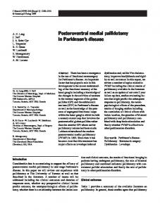 Posteroventral medial pallidotomy in Parkinson s disease
