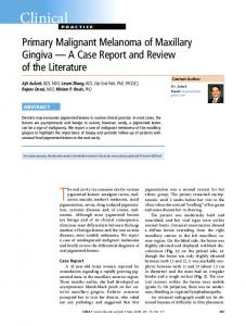 Primary Malignant Melanoma of Maxillary Gingiva A Case Report and Review of the Literature