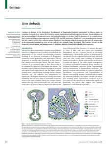 Seminar. Liver cirrhosis