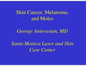 Skin Cancer, Melanoma, and Moles. George Anterasian, MD. Santa Monica Laser and Skin Care Center