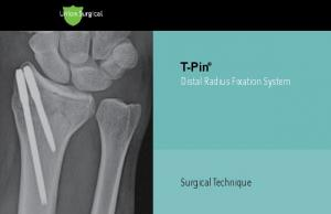 T-Pin Distal Radius Fixation System. Surgical Technique