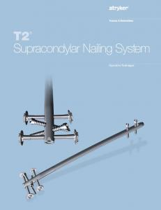 T2 Supracondylar Nailing System. Operative Technique