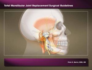 Total Mandibular Joint Replacement Surgical Guidelines. Peter D. Quinn, DMD, MD